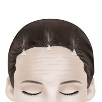 F-4 Endoscopic Forehead Lift method image 3