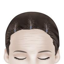 F-4 Endoscopic Forehead Lift method image 4