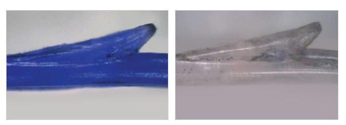 F-5 EZ Lift (Thread Lift) blue rose lift feature image 1