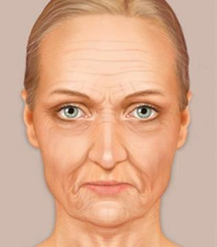 F-6-More-Lift-Surgery cause of aging