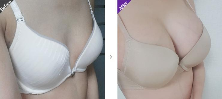 motiva-breast-surgery-image11