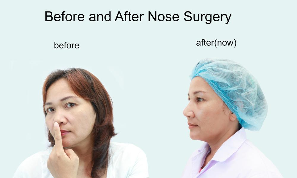 Rhinoplasty Nose Surgery before and after photo 2