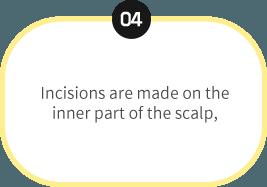 endoscopic-4