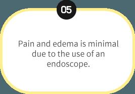 endoscopic-5