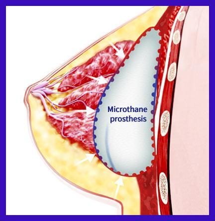 microthane-3